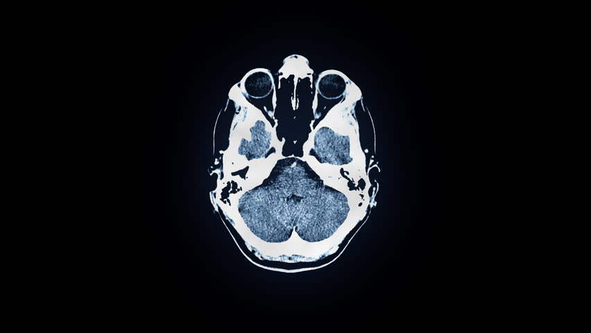 Human brain MRI scan. Top view. Discrete slices, blue tint. Source: Motion Graphics & Compositing. Clip ID: ax415c